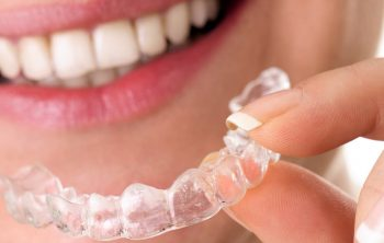 Caring for Your New Smile After Invisalign Treatment