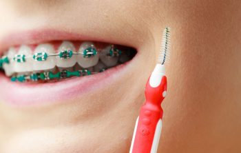How to Manage Wisdom Teeth and Braces in Calgary